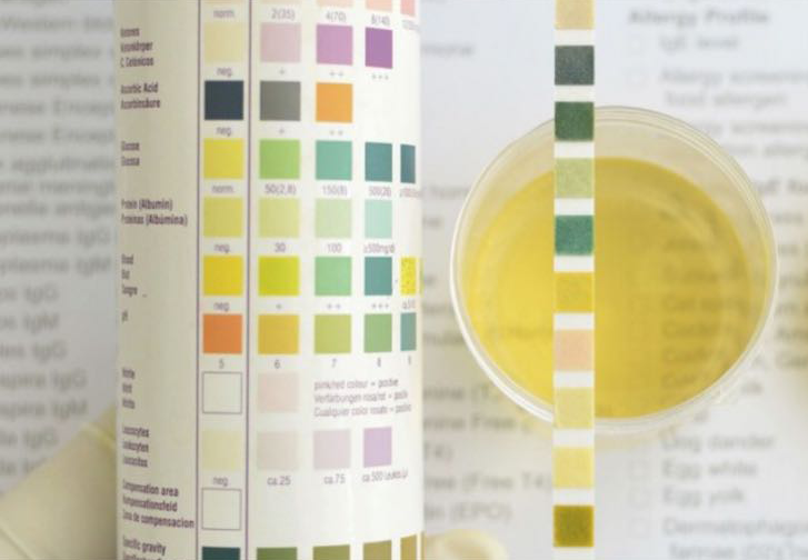 urine test strips  u2013 egy chem
